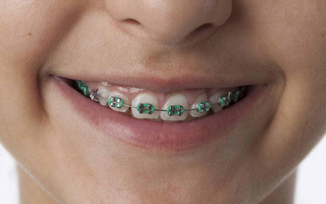 Aparatele dentare la pitici – cum tratăm problemele de mușcătura de mici?