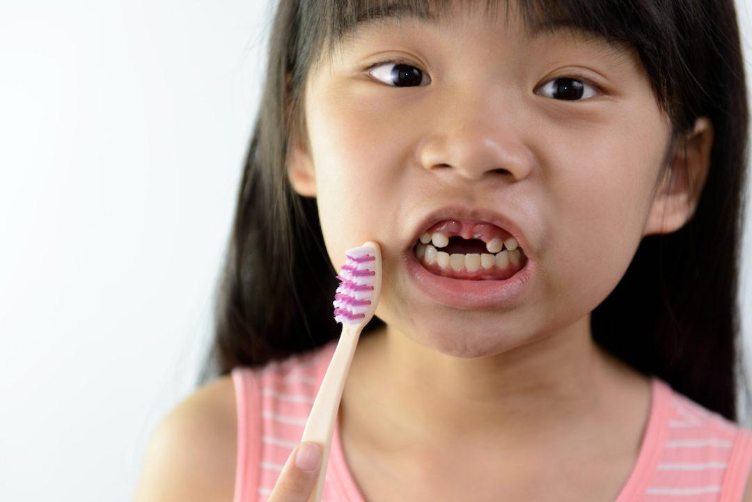 E grav daca lipsesc dintii de lapte?