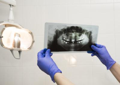 Radiografii dentare la copii